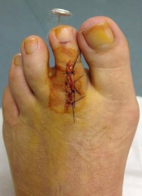 Hammer toe fusion