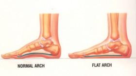 flatfoot-comparison
