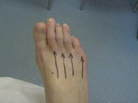 BEFORE Hammer toe and toe shortening
