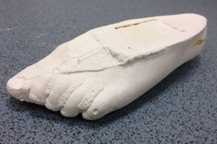 plaster-foot-cast