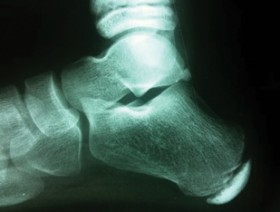 Sever's disease affecting the growth plate at the rear of the heel