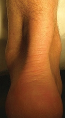 thickened-tendon